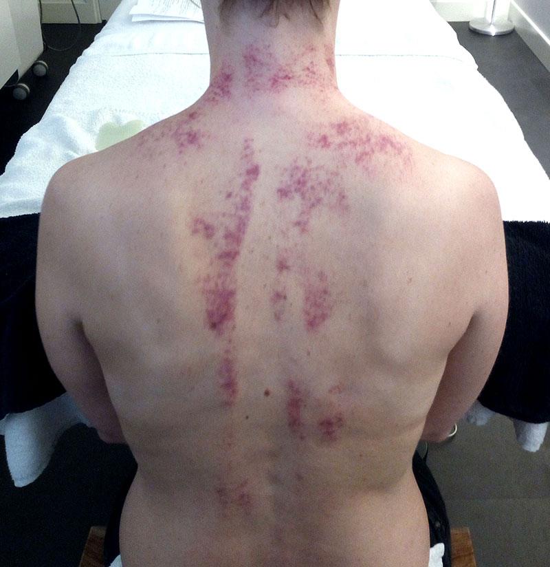 Kaart van de rug na Guasha behandeling